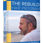 Rebuild Hair Program (Hair Loss Protocol) Without Any Prescription Drugs Or Painful And Expensive Hair Transplants