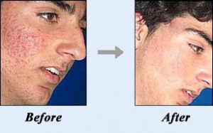 Acne No More Before & After