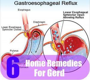 6 Acid Reflux Symptoms